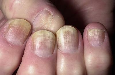 Заболевания ногтей меню отзывы