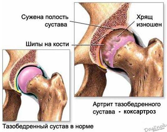 Меню при коксартрозе тазобедренного сустава арнизин крем для лечения суставов купить в москве