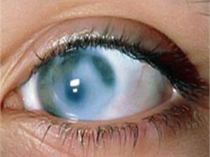 Диета при глаукоме