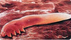 диета от паразитов в организме