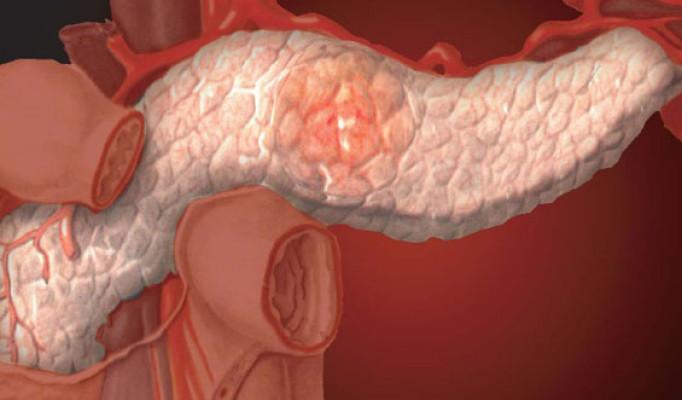 Можно ли похудеть от кардиотренировок