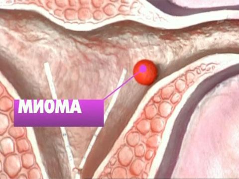 диета при онкологии матки