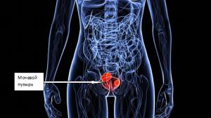 Диета при раке мочевого пузыря у мужчин