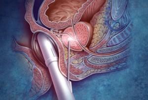 Питание при лучевой терапии предстательной железы