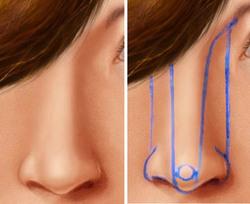 Нос кристины орбакайте до и после пластики