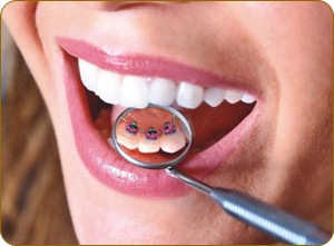 стоматология винир саратов сайт