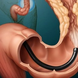 Treatment of folk remedies for colon cancer